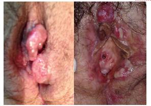 Herpes genital no inicio da gravidez