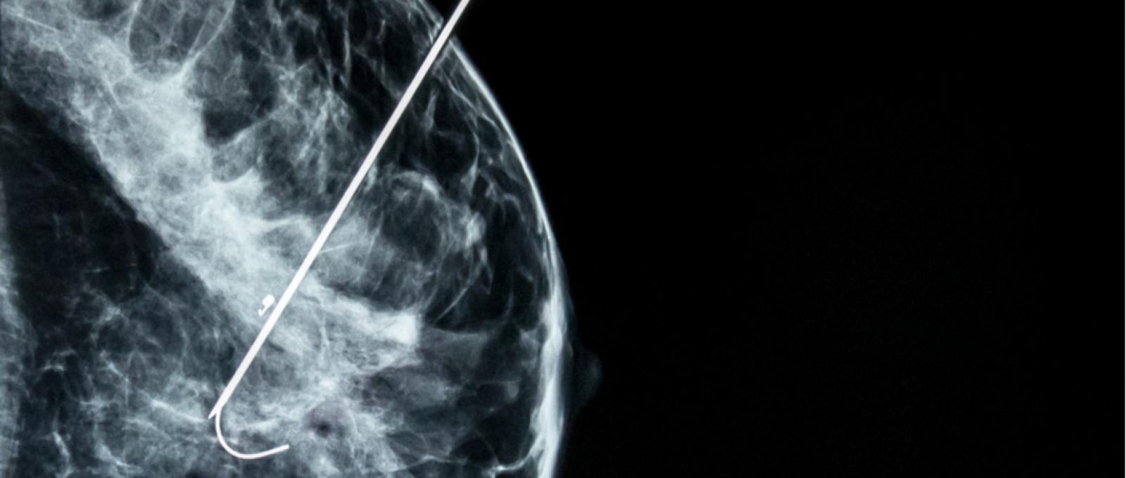 veias mamárias inchadas
