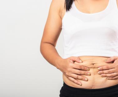 Hemorragia pós-parto: prevenção, diagnóstico e manejo não cirúrgico